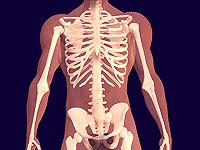 tulang osteoporosis